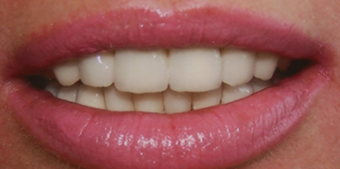 Close up of Kent patient's dental implant success. Clean, white crown teeth after dental implant's.
