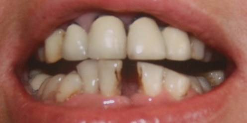 Close up of Kent patient's teeth in need of dental implants. Tooth decaying teeth.